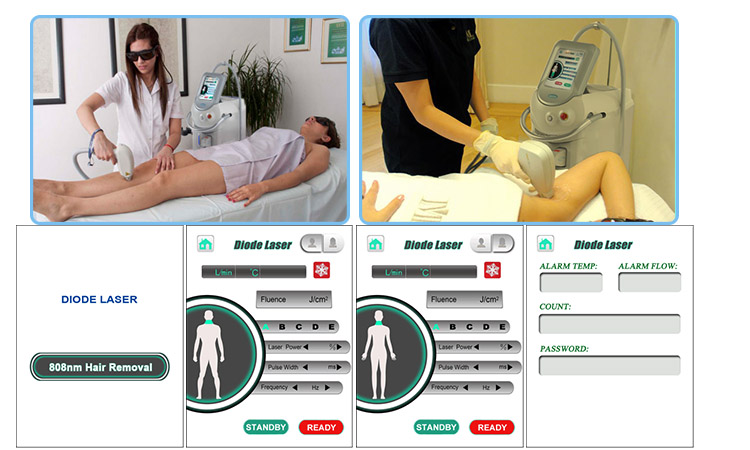 What Diode Laser Hair Removal Machine We Recommend For You?