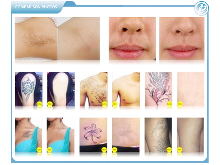 SHR+ Nd Yag Laser Equipment Treatment Before and After