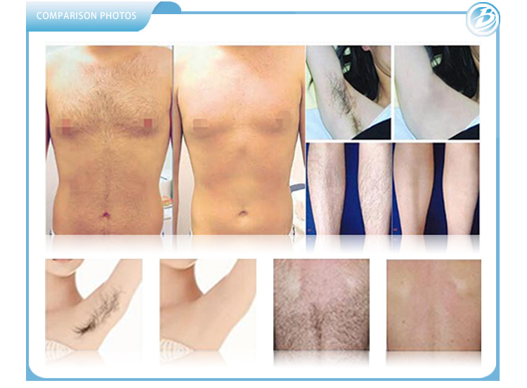 Laser hair removal machine's treatment