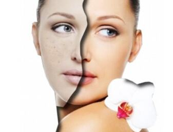 CO2 Laser Helps you Become Younger