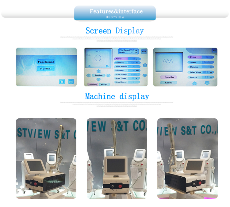 CO2 fractional machine from our factory.jpg