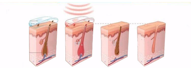 Why choose Diode Laser hair removal