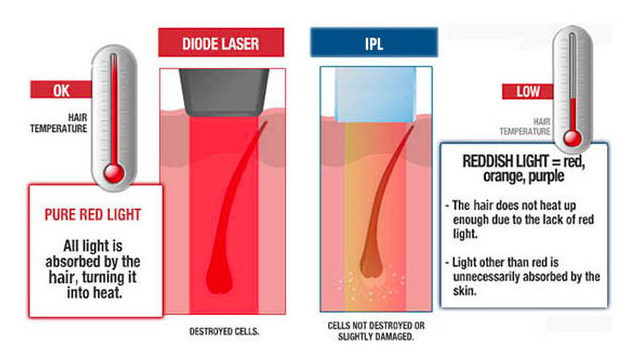 Do You Know The Differences Between IPL And Diode Laser?