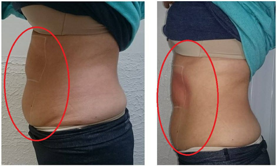 Tips About The Cryolipolysis Body Slimming Machine
