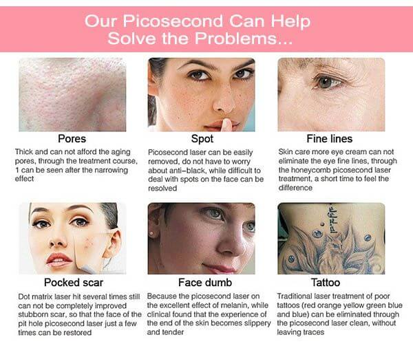 All Things You Need To Know About The Picosure Las...