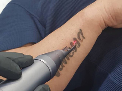 What Tattoo Removal Machine Is Suitable For Your Tattoo Shop?