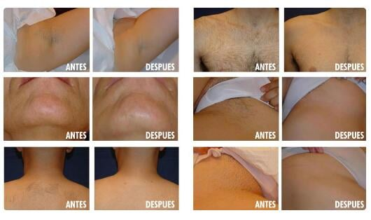 The Tips When You Buy Diode Laser Hair Removal Machine