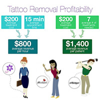 Laser Tattoo Removal Machine The Complete Guide