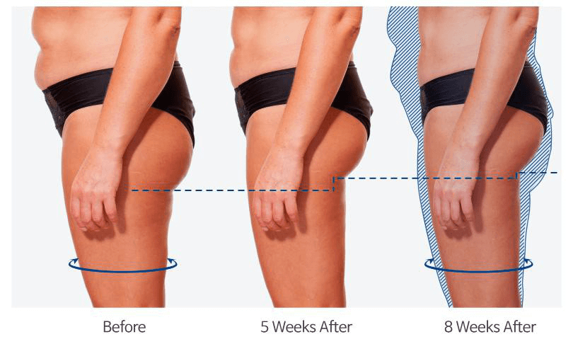 slim beauty machine effect
